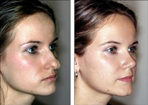 Top 10 Rhinoplasty Tips For Before and After Surgery